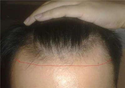 治疗脱发的广告文案